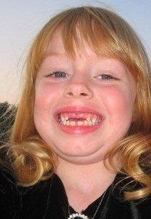2005 no front teeth