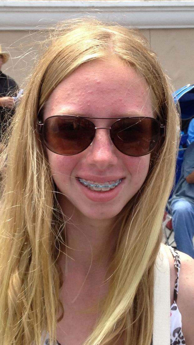mary acne